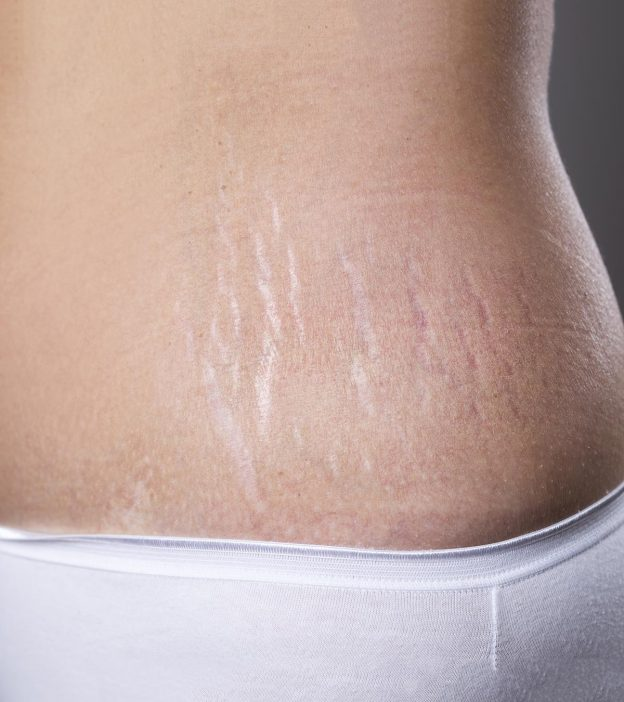 How To Remove Stretch Marks After Pregnancy 16 Home Remedies