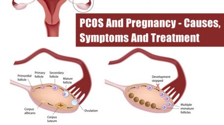 pregnant while having pcos