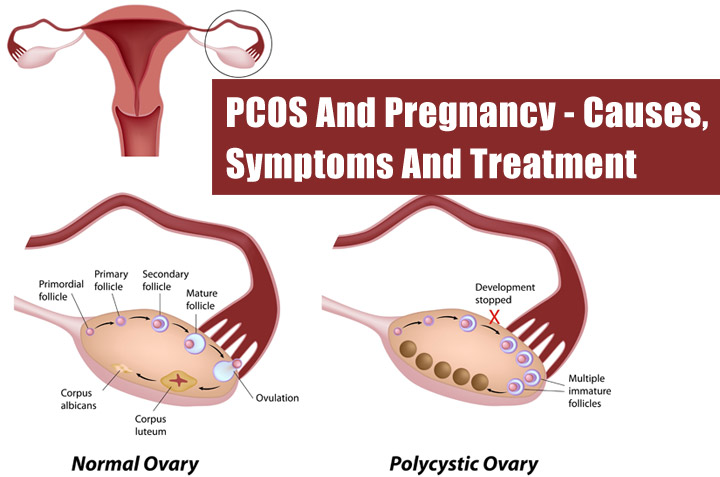 PCOS And Pregnancy – Symptoms, Treatment & Tips To Conceive