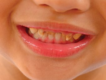 Bruxism In Kids – Causes, Symptoms And Treatment