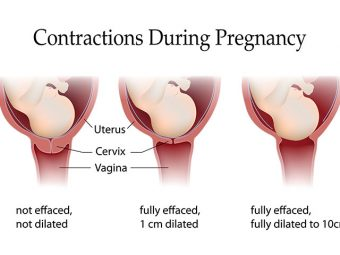 3 Types Of Contractions During Pregnancy And Their Implications