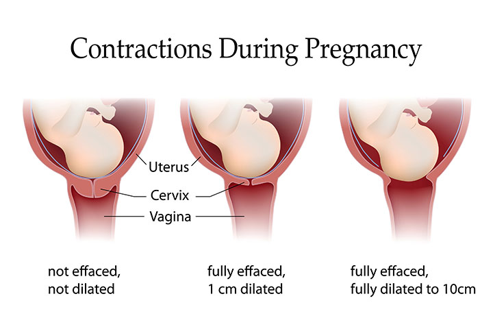 3 types of contractions during pregnancy its significance 3 types of contractions during pregnancy and their implications ccuart Image collections