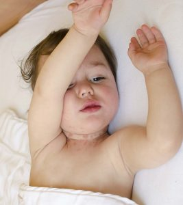 Baby Neck Rash Causes, Symptoms And Remedies