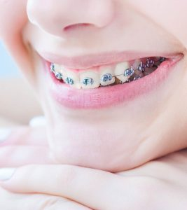 Braces For Kids Right Age To Get Them And Dental Care To Take