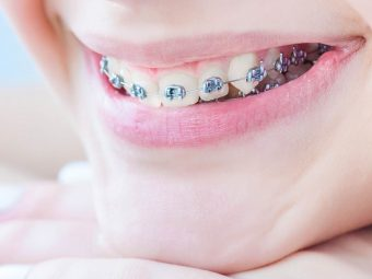 Braces For Kids: Right Age To Get Them And Dental Care To Take