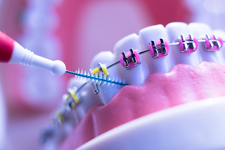 How To Care For Child's Braces