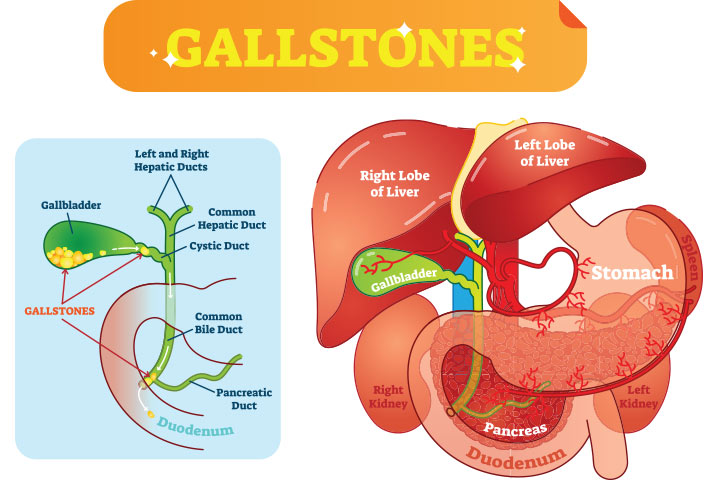What Is A Gallbladder