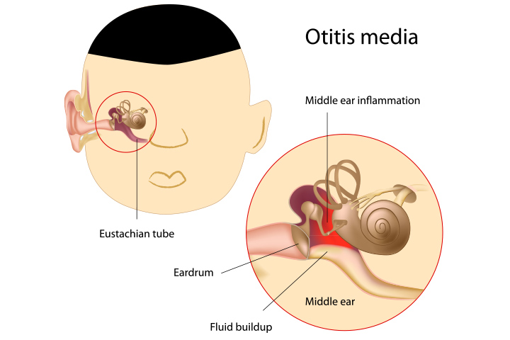 What Is Ear Infection In Toddlers