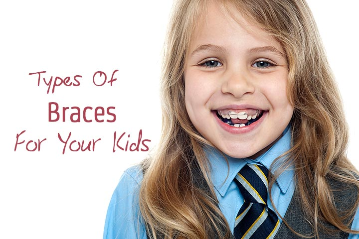 10 different types of braces for your kids