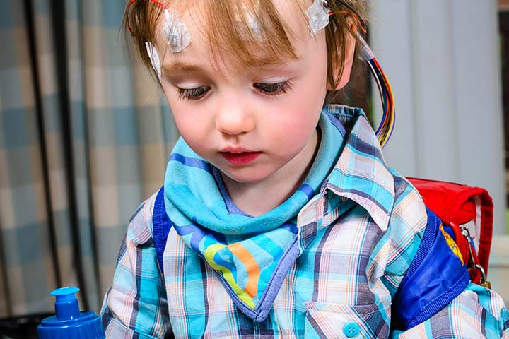 Epilepsy in children 9 causes 9 symptoms amp 2 treatments you should
