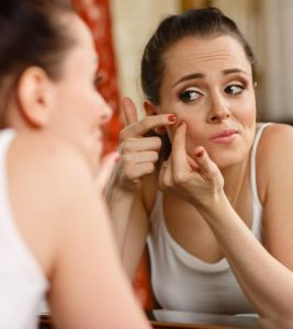 12-Easy-Steps-To-Treat-Teenage-Acne-At-Home