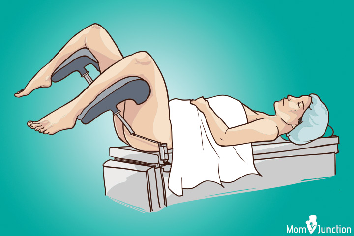Lithotomy position