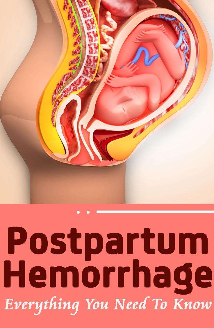 Postpartum Hemorrhage Symptoms, Treatment And Prevention-7232
