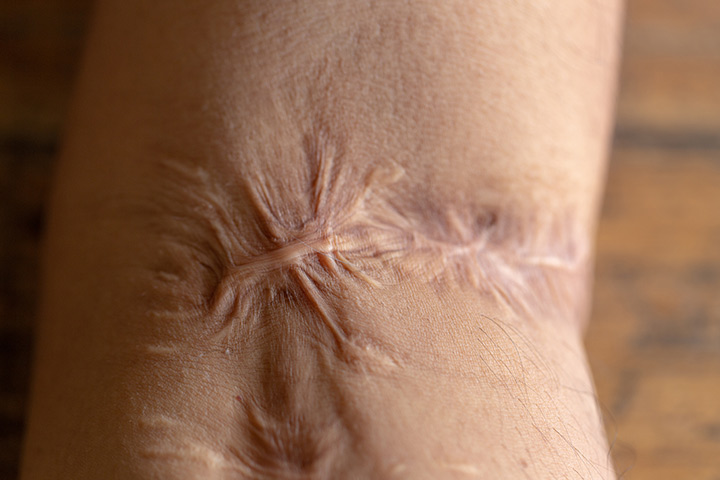Scar contractures