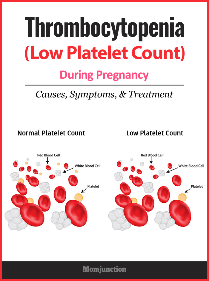 Thrombocytopenia (Low Platelet Count) During Pregnancy ...