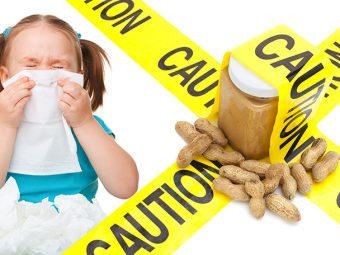 3 Simple Ways To Treat Peanut Allergy In Children