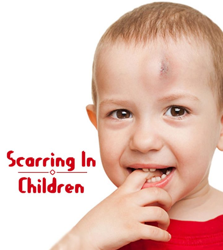 Images Of scarring in children