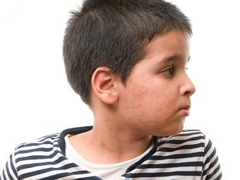 Eczema In Children - Causes, Symptoms And Treatment