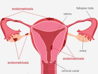 Can You Get Pregnant With Endometriosis?