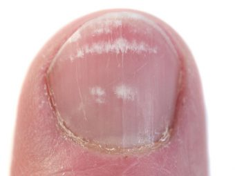 4 Effective Home Remedies To Treat Toenail Fungus During Pregnancy