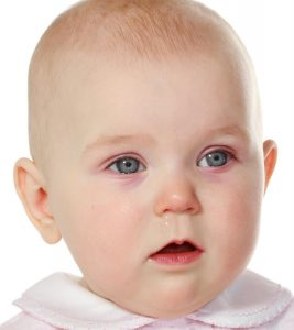 Pink-Eye-In-Babies-Causes,-Symptoms-And-Treatment