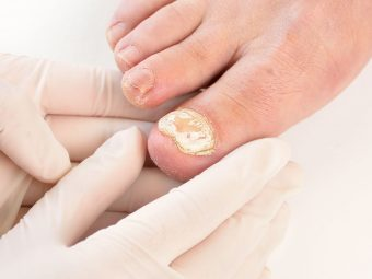 Toenail Fungus During Pregnancy: Natural Remedies And Treatment
