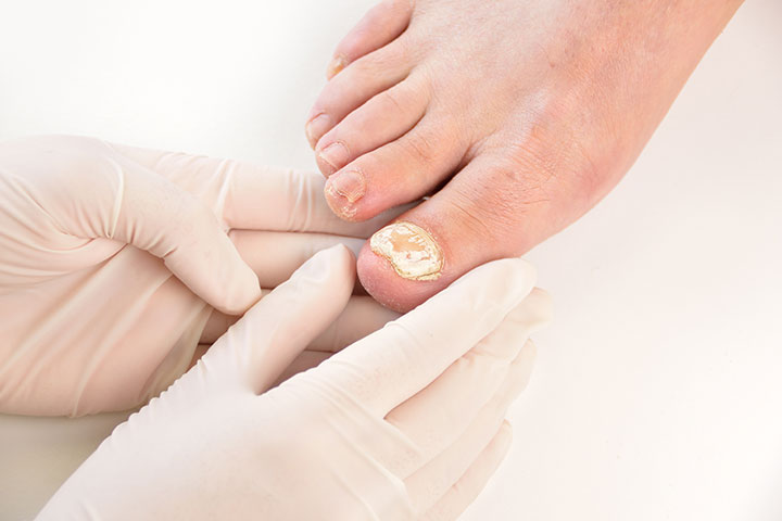Toenail Fungus During Pregnancy Natural Remedies And Treatment