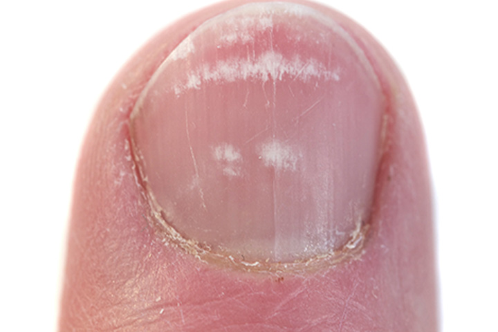 4 Best Remedies To Treat Toenail Fungus During Pregnancy