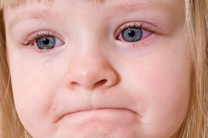 pink eye symptoms in toddlers