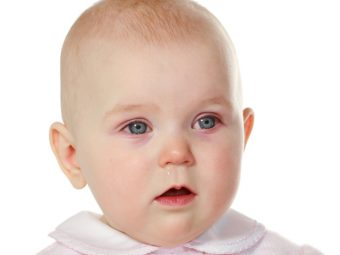4 Effective Tips To Cure And Prevent 'Pink Eye' In Babies