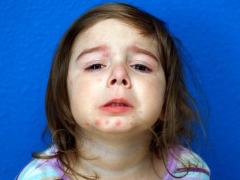 Psoriasis In Children: Types, Symptoms And Treatment