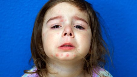 14 Effective And Soothing Treatments Of Psoriasis In Children