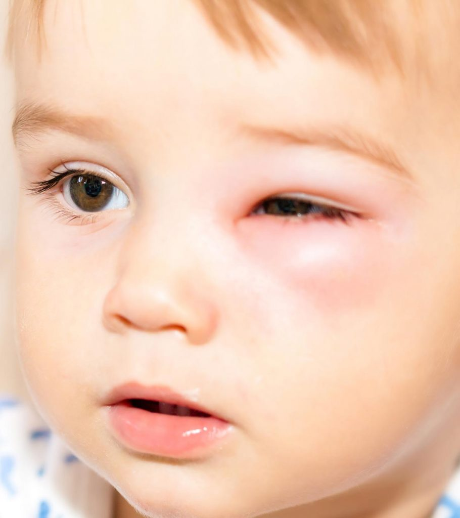 Periorbital Cellulitis In Children: Symptoms And Treatment