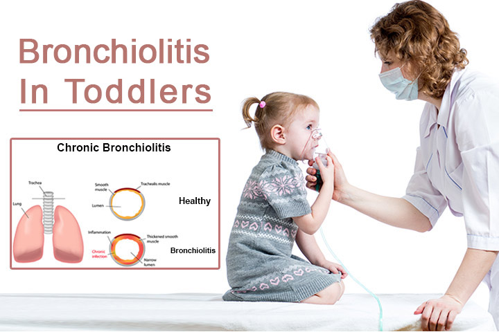 bronchiolitis in toddlers