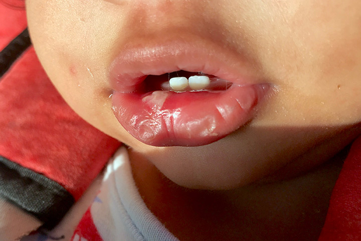 How To Identify Mouth Ulcers