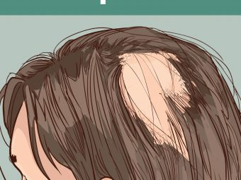 What Causes Alopecia In Children And How To Deal With It?