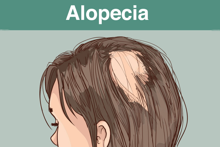 What causes alopecia in children and how to deal with it
