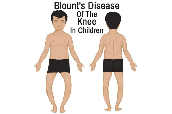 blount disease