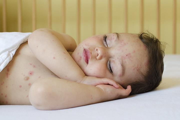 chicken pox in toddler