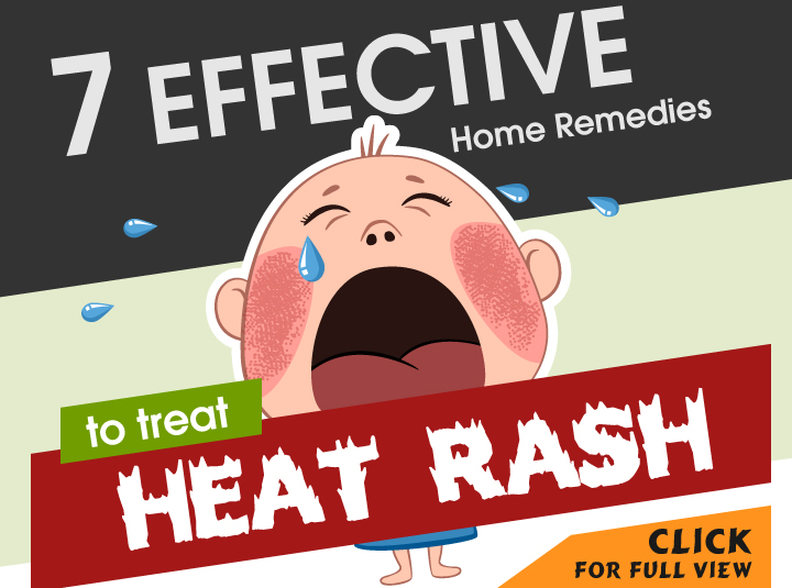 heat-rashes-in-babies