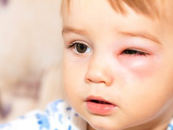 7 Effective Treatments To Cure Periorbital Cellulitis In Children