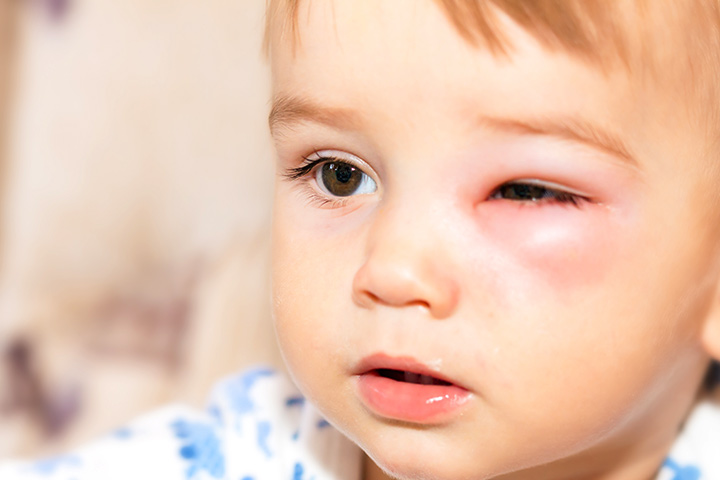 periorbital cellulitis in children
