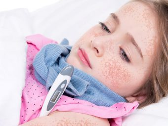 Scarlet Fever In Children: Causes, Symptoms And Treatment