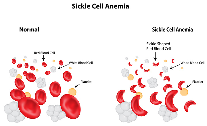 thesis on sickle cell anemia Essay the sickle cell disease is an inherited blood disorder that affects red blood cells people with sickle cell have red blood cells that have mostly hemoglobin's.