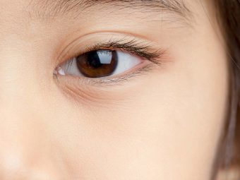 Corneal Abrasion In Children – Causes, Symptoms And Treatment