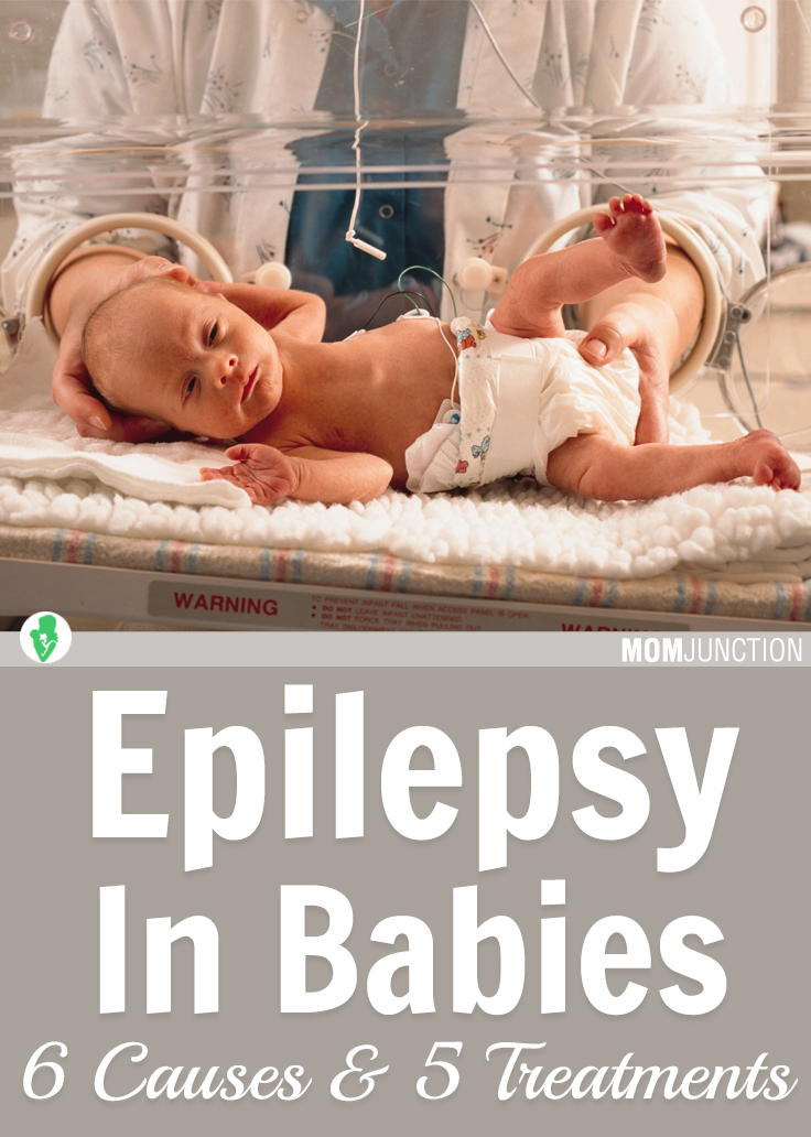 6 Causes And 5 Treatments Of Epilepsy In Babies