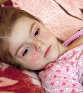 Fifth-Disease-In-Children-Causes-Symptoms-And-Treatment