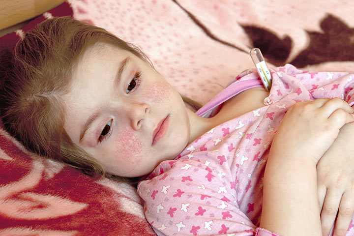 Fifth Disease In Kids
