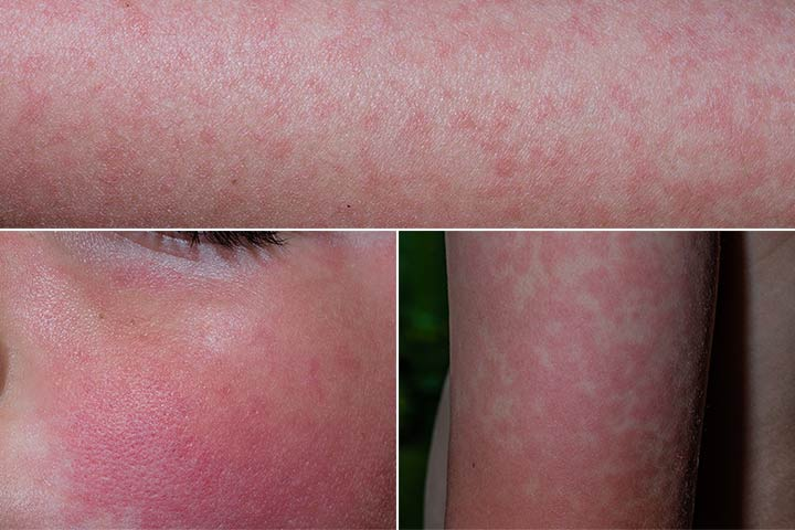 Fifth Disease Rash Pictures
