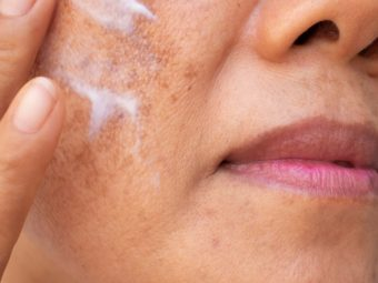 Pregnancy Melasma (Chloasma): Causes And Treatment
